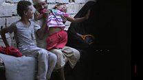 Daawo: Saameynta collaada Yemen ay ku yeelatay carruurta