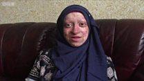 Assya Shabir, lahir dengan kondisi kulit melepuh