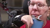 Cómo un hombre paralizado logró comer y beber sin ayuda gracias a implantes en su cerebro