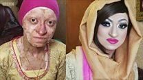 A doença que deixa a pele tão frágil quanto a asa de uma borboleta