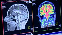 Scanner hope for cause of brain bleed