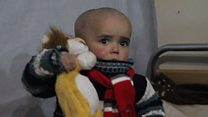 مرضى السرطان ..معاناة مضاعفة في سوريا