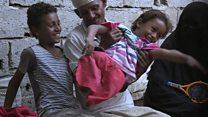 Emad, el niño que se quedó sin piernas desde los 4 años cuando misil impactó a su casa en Yemen