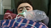 At least 58 people killed in suspected chemical attack in Syria