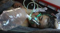 Los niños víctimas del ataque del gobierno en Siria contra una base rebelde