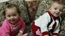「うちの子たちが何をした」 シリア空爆で家族22人を失った父親
