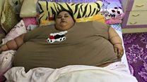 Ameliyatla iki ayda 242 kilo verdi