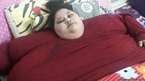 ผ่าตัดลดน้ำหนักหญิงอ้วนที่สุด