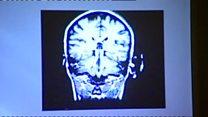 دراسة: المشروبات المحلاة اصطناعياً قد تضر العقل