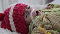 خطر قحطی همزمان با جنگ یمن