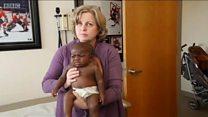 چار ٹانگوں اور دو یرڑھ کی ہڈیاں کے ساتھ پیدا ہونے والی بچی کا آپریشن