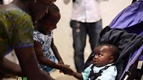 Дівчинка, яку відокремили від близнюка-паразита, повернулась додому