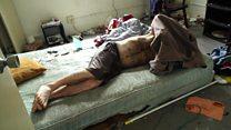 أكثر من 90 شخصا يموتون يوميا في أمريكا بسبب للجرعة الزائدة