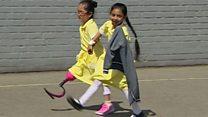 A calorosa reação de colegas no pátio da escola a prótese de menina britânica