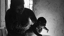 Video giới thiệu ảnh mẹ chăm sóc bé bị dị tật đầu nhỏ do virut Zika tham dự chung kết giải Ảnh Pulitzer 2017
