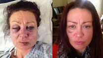 Why I took selfies of vicious injuries from ex-boyfriend
