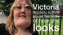 Watch: Victoria Wright on living with facial disfigurement