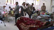 ویرانی، قحطی و شیوع وبا رهآورد جنگ یمن برای مردم این کشور