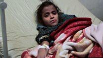الكوليرا يفتك بمئات اليمنيين