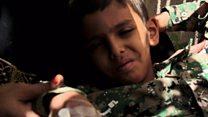 ယီမင်မှာ ကာလဝမ်းရောဂါဖြစ်ပွား