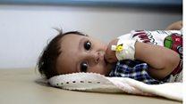 Yemen'de kolera salgını yayılıyor