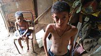 Exclusivo BBC Mundo: las impactantes imágenes que muestran el drama de la severa desnutrición infantil en Venezuela