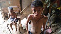 Exclusivo: as imagens da tragédia da fome entre crianças na Venezuela