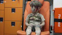 صورة الطفل عمران والحرب الإعلامية في سوريا