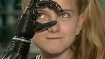 3D printed bionic hands trial begins