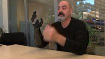 Найджел зі штучною рукою рекламує протези