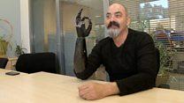 Бионическая рука: как технологии меняют жизнь