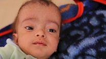 Hospital battling world's worst cholera outbreak
