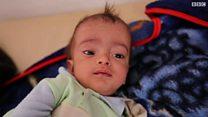 صور حصرية للبي بي سي تظهر تفشي الكوليرا في اليمن.