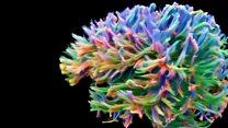 Cómo es la imagen del escáner de conexiones cerebrales más detallado hasta el momento y para qué sirve