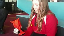 Girl gets 'bionic' hand from 3D print club