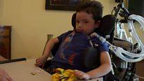 El niño en Estados Unidos con la misma enfermedad que Charlie Gard que consiguió superar todo pronóstico médico