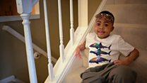 Primeiro menino a receber transplante duplo de mãos supera rejeições e já joga beisebol e come sem ajuda