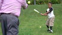 Çift kol nakli olan ilk çocuk artık beyzbol oynuyor
