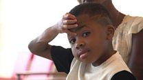 La historia de Zion Harvey, el niño que recibió el primer trasplante doble de manos