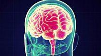 کاهش شنوایی، انزوا و تحصیلات پایین احتمال ابتلا به زوال عقل را افزایش میدهند