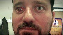 'Eyeborg': The man with the camera eye