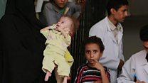 یمن جګړه، لوږه او اوس کولرا
