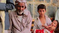 الكوليرا في اليمن ما زال بعيدا عن السيطرة