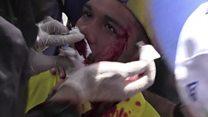 Ferido, violinista símbolo de protestos na Venezuela toca instrumento em cama de hospital