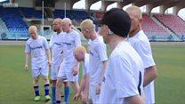 Le foot contre la discrimination des personnes atteintes d'albinisme