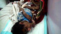 گزارشی از مردم گرفتار جنگ در یمن