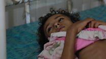 كيف يتضور الأطفال جوعا حتى الموت في اليمن