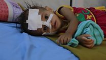 ယီမင်မှာ လူသားချင်း စာနာမှု ဆိုင်ရာ အကူအညီတွေ လိုအပ်
