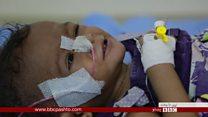 د یمني ماشومانو غمېزه