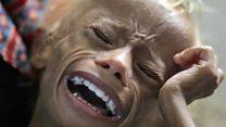 ¿Qué pasó con Saleem, el niño que se convirtió en el símbolo más brutal de la hambruna en Yemen?